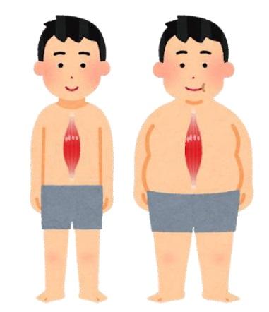 サルコペニア肥満