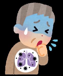 誤嚥性肺炎 予防